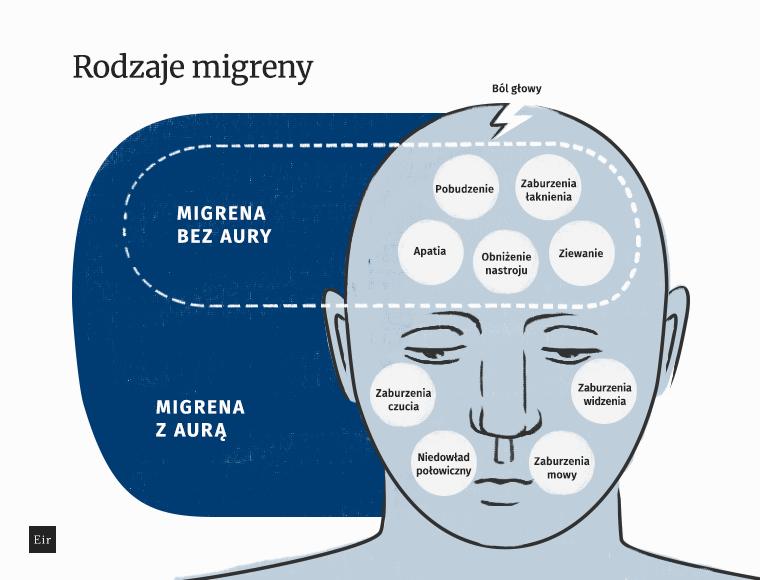 Symptomy charakterystyczne dla migreny z aura i bez aury - porównanie