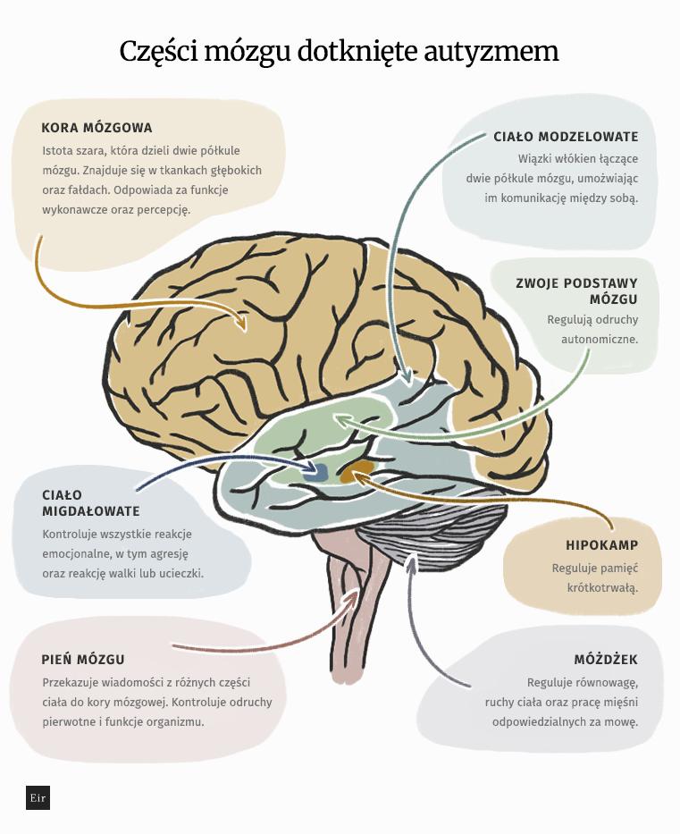 Części mózgu dotknięte autyzmem
